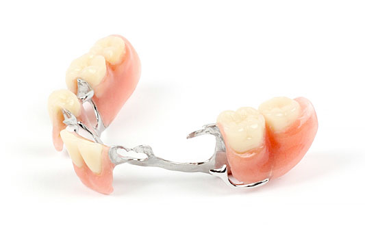 Ottawa Denture & Implant Centre Partial Dentures